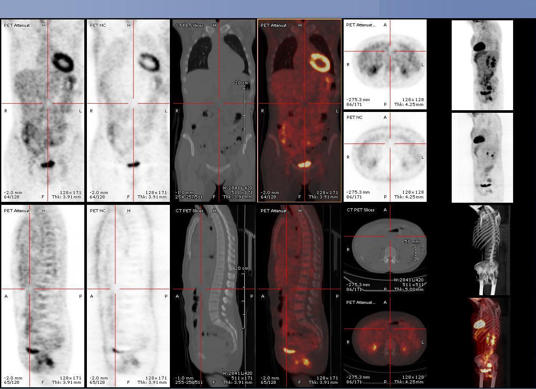 referti radiologici pacs